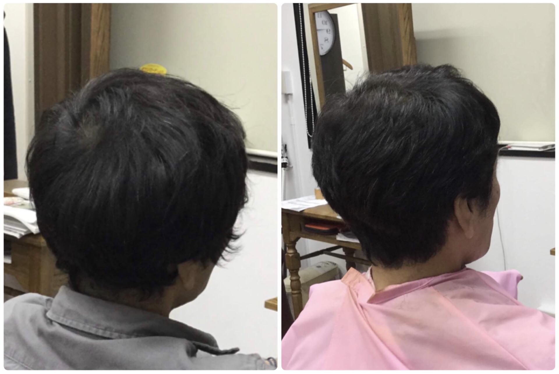 くせ毛だけでなく骨格の変化によっても収まりが違うんですよ!神戸くせ毛専門美容室アバディ