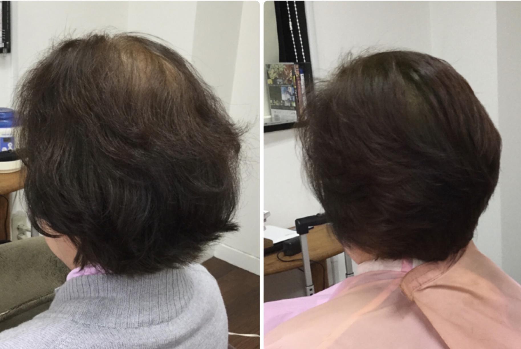 くせ毛細毛ハネる加齢毛に【スキハサミを使わないカット 】で解決し華麗毛に