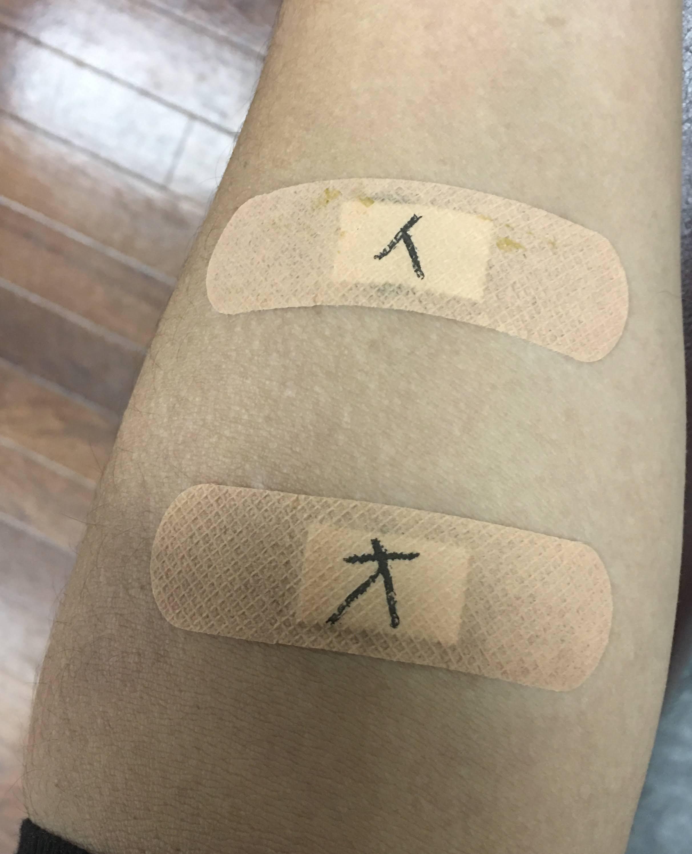 ヘアカラーが不安アレルギーは突然きます!東灘区でパッチテストをしています神戸摂津本山美容室アバディ